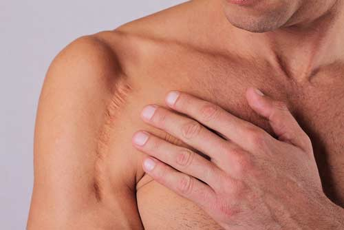 cicatrice cicatrices osteopathie